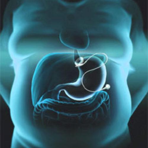 Bariartic-Procedures